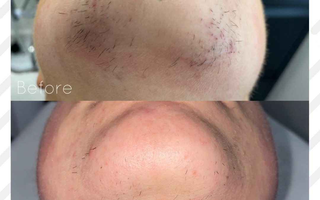 PCOS hair growth – how can laser hair removal help?