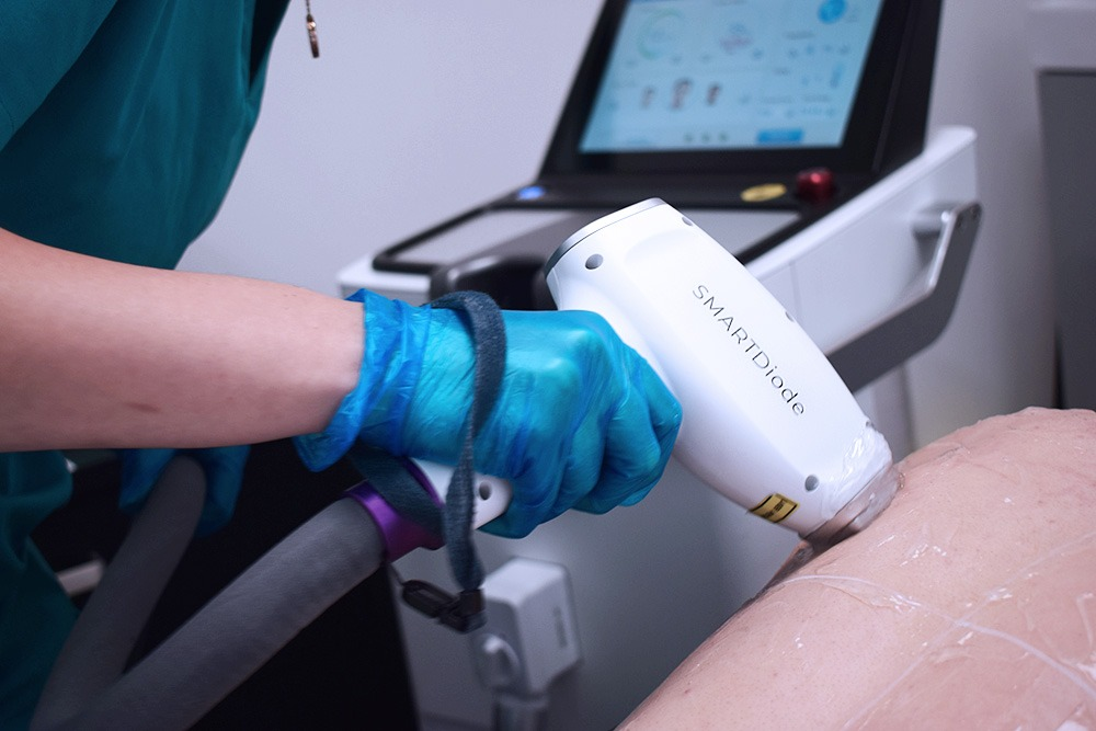 Laser hair removal Smart Diode machine